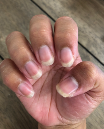 Neocell Collagen Powder - Week 2 Nails